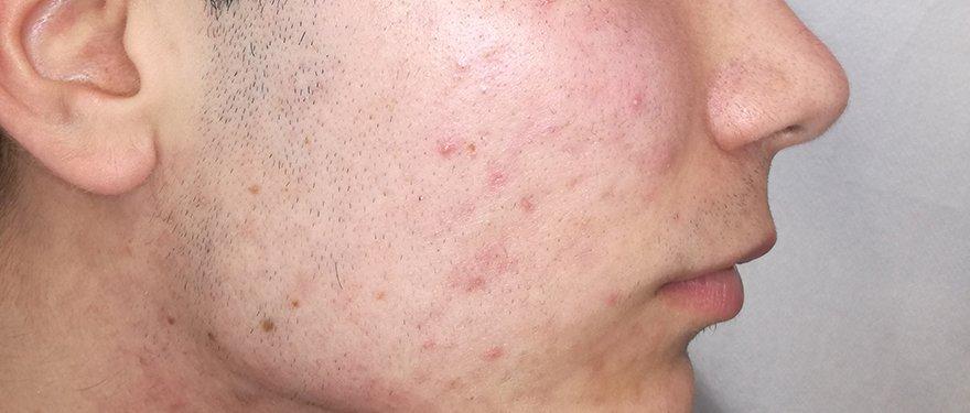 Medilase Laserska Klinika! Medilase – Laserska estetika, pomlajevanje, dermatologija, akne, strije. medilase-akne--after-image