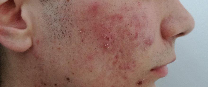 Medilase Laserska Klinika! Medilase – Laserska estetika, pomlajevanje, dermatologija, akne, strije. medilase-akne--before-image