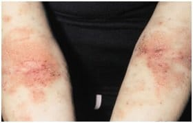 Atopični dermatitis medilase prikazna slika