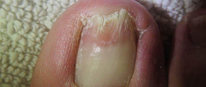 medilase-odstranjevanje-glivic--Noht