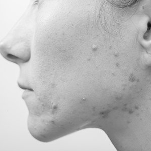akne-medilase-prikazna-slika__bw