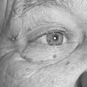 medilase-fibromi-prikazna-slika__bw