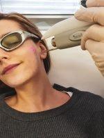 Medicinski laser – kako deluje, za koga je primeren?