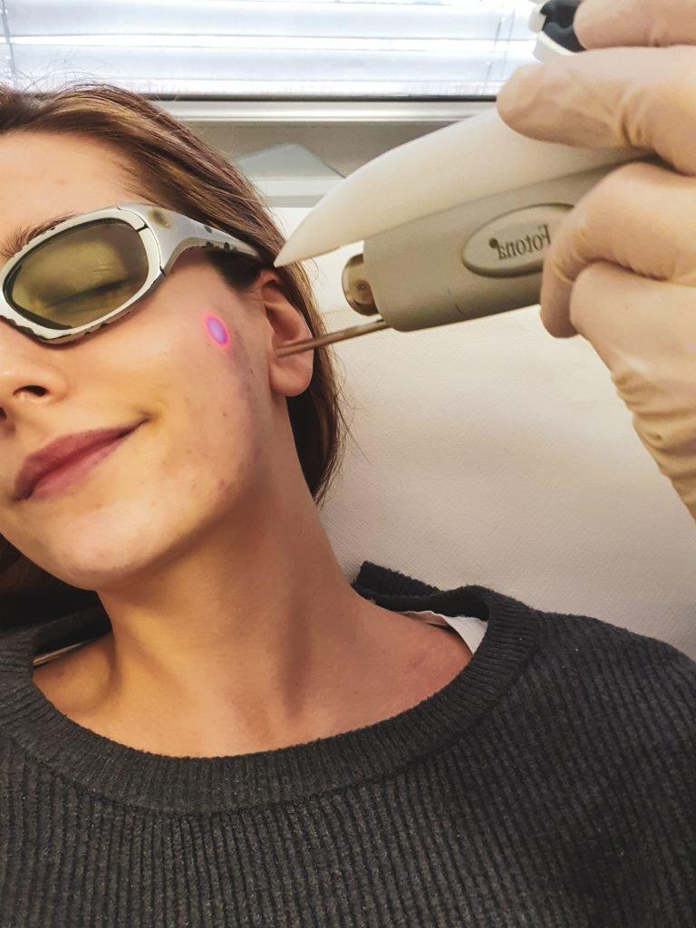 medicinski-laser-medilasae