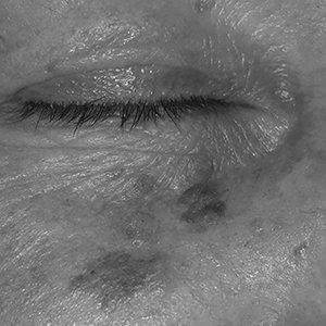 pigmentacije__medilase-prikazna-slika-bw